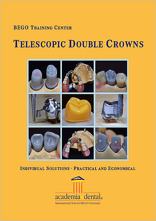 Telescopic double crowns – Individual Solutions • Practical and Economical