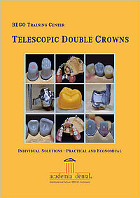 Telescopic double crowns: Individual solutions – practical and economical