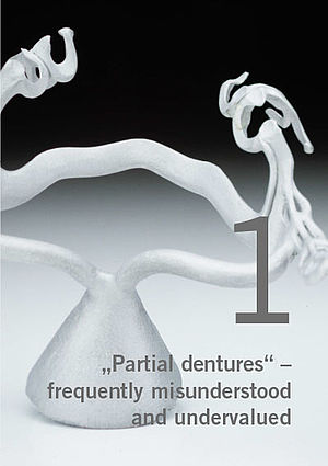 Partial dentures – frequently misunderstood and undervalued, Part 1