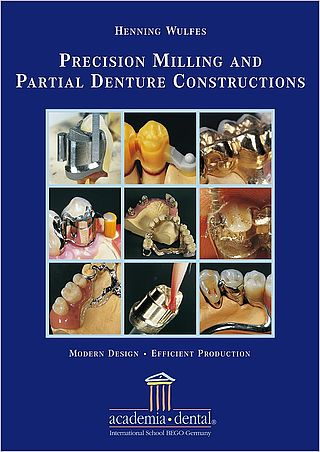 Precision Milling and Partial Denture Constructions – Modern Design and Efficient Production