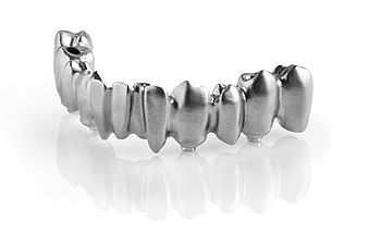 CAD/CAM occlusally screw-retained bridge