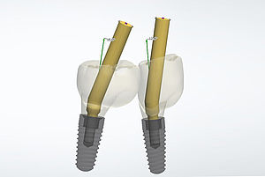 From now on, BEGO offers angulated screw channels for one-piece bridge and bar restorations in which the alignment of the screw access channel within the prosthetic restoration can be individually selected from 0° to 20° to the implant position.
