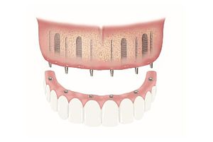Schematic diagram of a provisional restoration using BEGO Semados® Provisional Implants