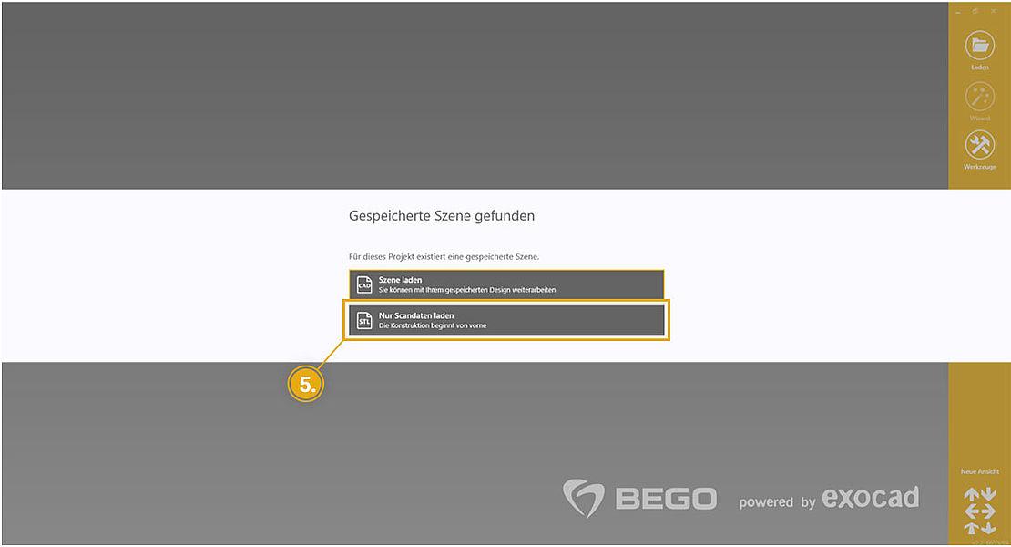 BEGO exocad Tutorial – Design für einen neuen Fall