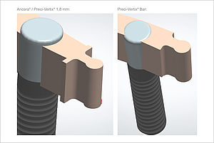 The new rod attachments from Preci-Vertix offer different types of restoration options.
