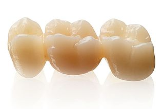 KATANA Zirconia STML  – The super-translucent multi-layered zirconia – inspired by teeth