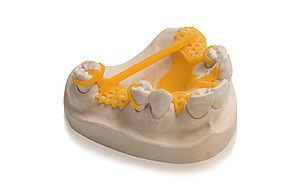 VarseoWax CAD/Cast – resin for the 3D printing of CAD/Cast® partial denture frames with BEGO Varseo S
