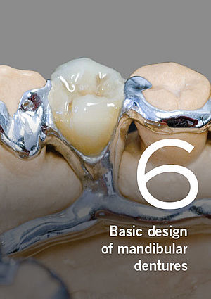 Partial dentures – Basic design of mandibular dentures, Part 6