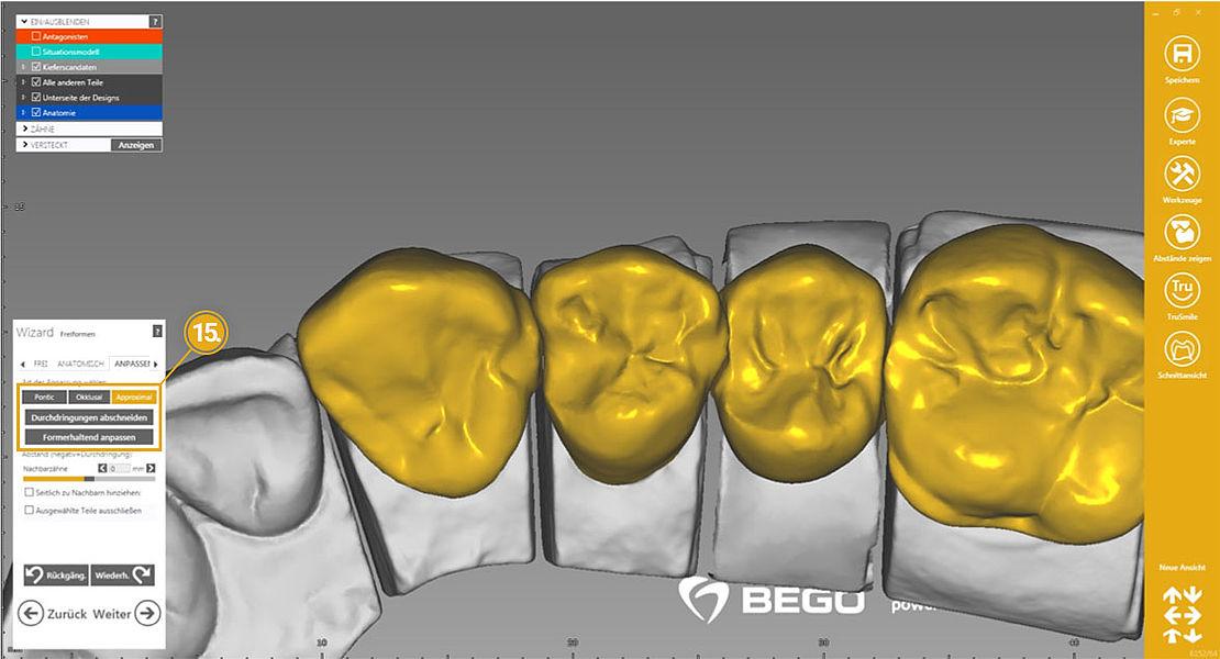 BEGO exocad Tutorial – Design für einen neuen Fall übernehmen und