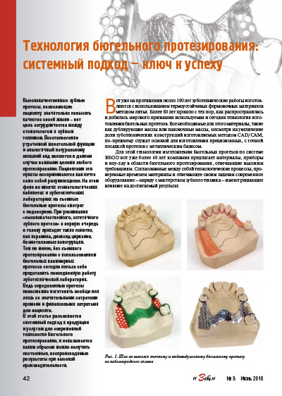 Investment materials for model casting in the dental laboratory