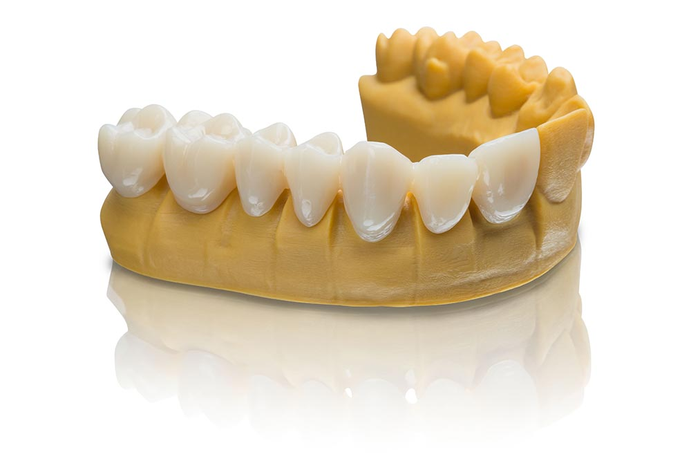 VarseoSmile Temp is ideal for 3D printing of temporary crowns and bridges, inlays, onlays and veneers.