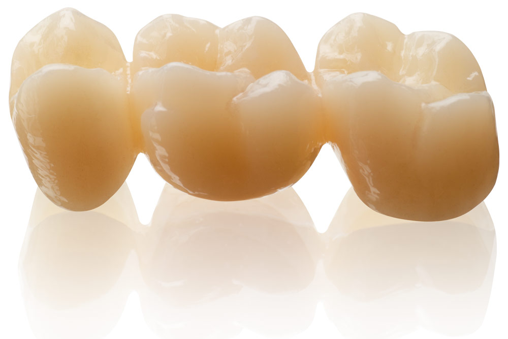 Available in 13 colors: BEGO offers now highly esthetic restorations made of KATANA Zirconia STML