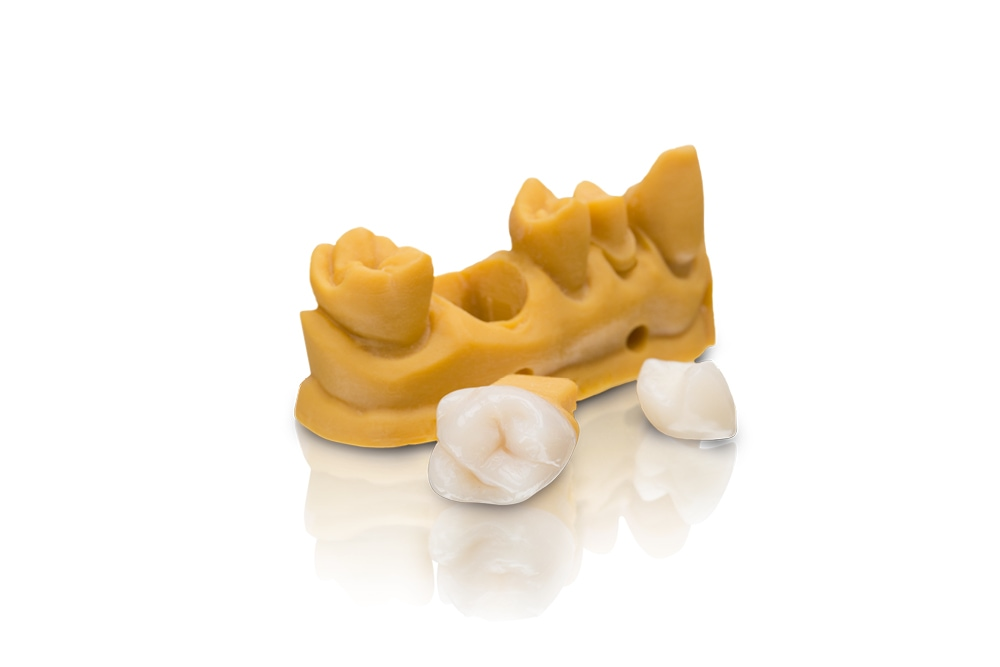 VarseoSmile Crown – the first Varseo material for the 3D printing of permanent single crowns is characterized by its outstanding strength, low water absorption and high color stability